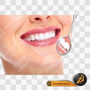 عکس PNG معاینه دندان