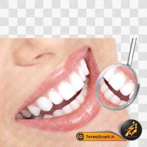 عکس png دندانپزشکی