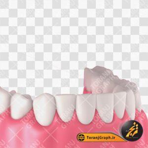 تصویر png دندان