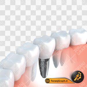 تصویر ایمپلنت دندان
