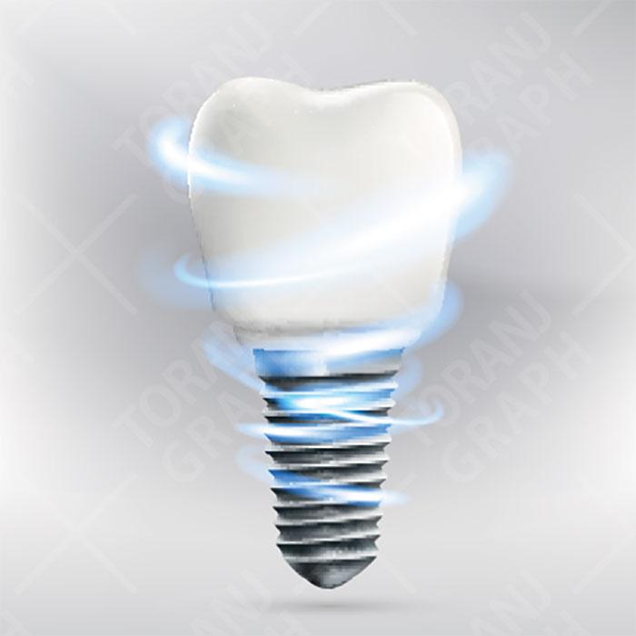 نمونه وکتور لایه باز ایمپلنت دندان
