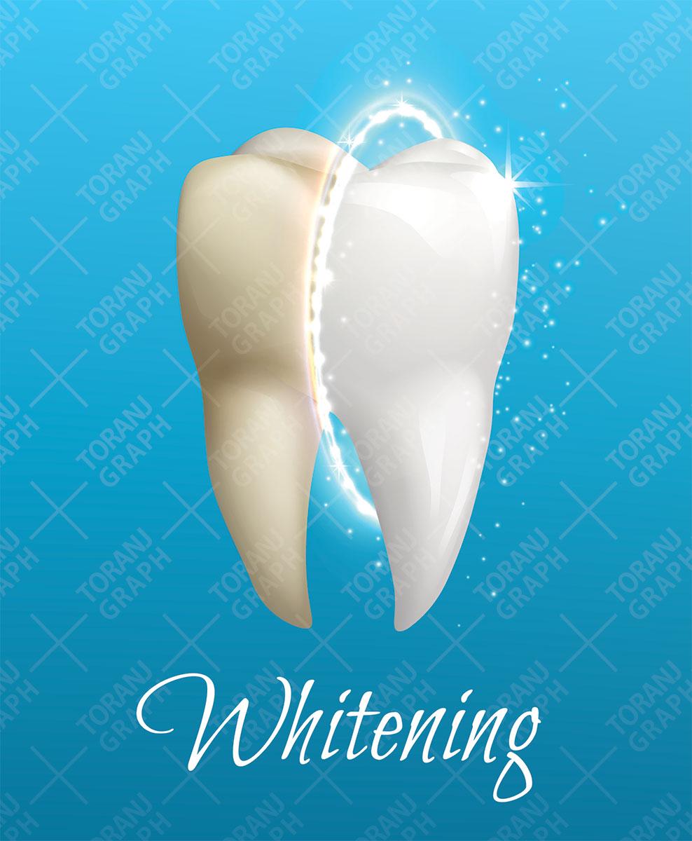 وکتور دندان سالم و پوسیده لایه باز